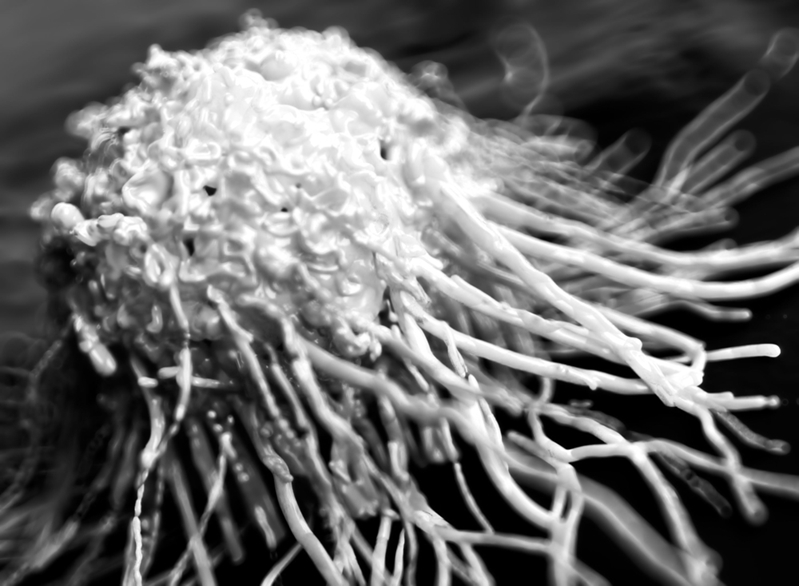 grayscale cancer cell